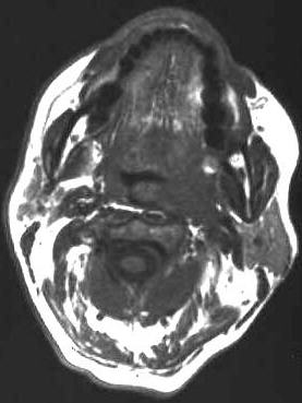 akzentuierte lymphknoten submandibular